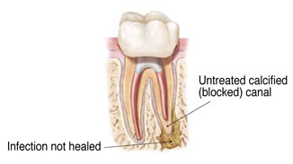 Endodontic treatment and root canal therapy by dentist in Seattle, WA.