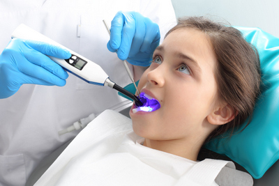 Dental sealants by dentist in Seattle, WA.