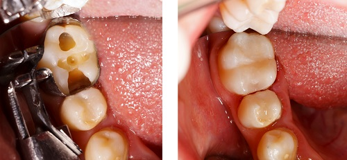 Composite Fillings at North Downtown Seattle Dental.